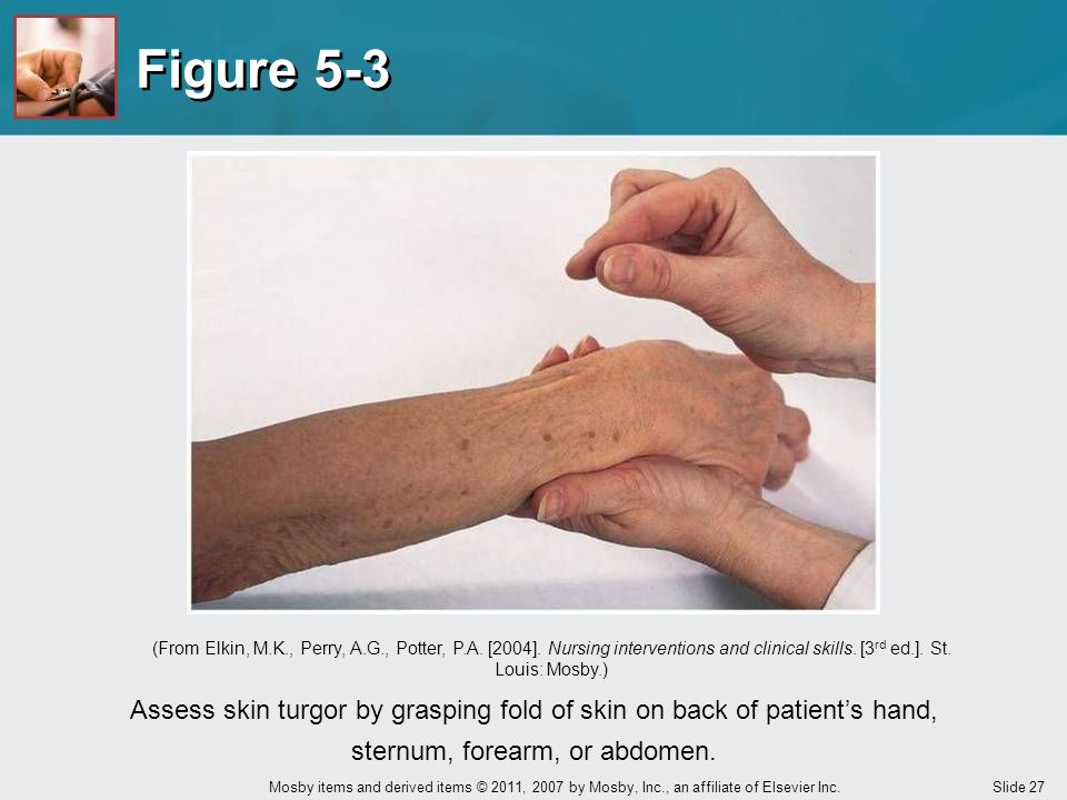 Figure 5-3 (From Elkin, M.K., Perry, A.G., Potter, P.A. [2004]. Nursing interventions and clinical skills. [3rd ed.]. St. Louis: Mosby.)